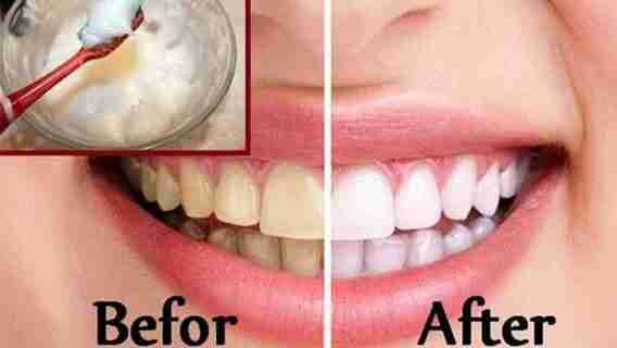 Can You Brush Your Teeth With Baking Soda